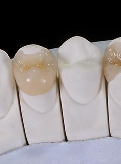 Model of tooth-colored fillings in Topeka & Silver Lake