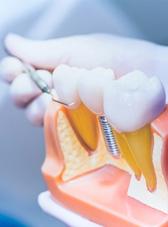 Dentist and dental implant model