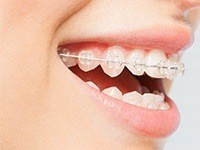 smile with clear braces