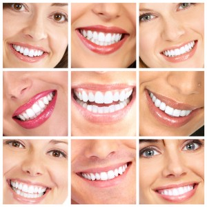 Dr. Michel Topeka teeth whitening