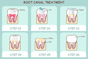 Dr. Michael E. Michel does root canal therapy in his Silver Lake office. Tooth-sparing and painless, it quickly relieves the discomfort of an ailing tooth.