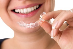 Invisalign clear aligners from Topeka dentist, Dr. Michael A. Michel, change crooked smiles discreetly. Read about this amazing system.