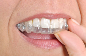 Invisalign in Topeka straightens teeth easily and efficiently.