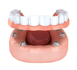 The team at Michel Dental provides the details you need to make the best choice for replacement teeth for you between dental implant and dentures in Silver Lake.