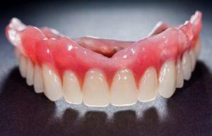 A top arch denture.
